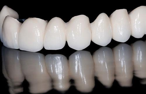 Birmingham, AL Dentist - Bridges